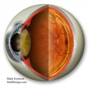 Are cataracts caused by FOV? Randall V. Wong, M.D.