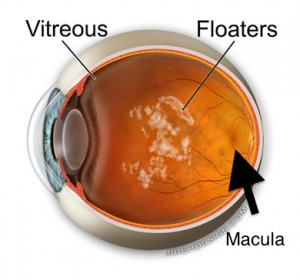 Vitreous floaters removed in premacular bursa.